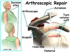 Shoulder Arthroscopic Rotator Cuff Tendon Repair Dr