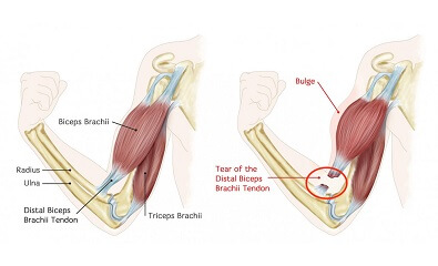 Biceps_Tendon_Tear_at_the_Elbow