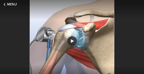 Loose Body Removal- Shoulder
