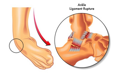 ankle reconstruction